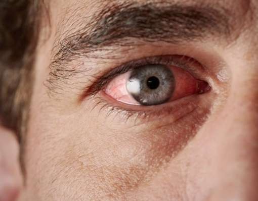 Почему сварка портит зрение
