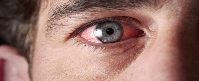 боль в глазах от сварки